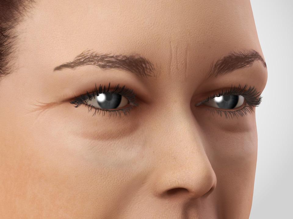 Eyelid rejuvenation 1