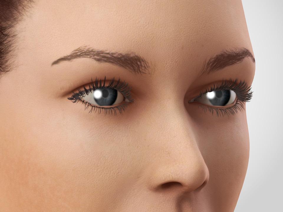 Eyelid rejuvenation 2