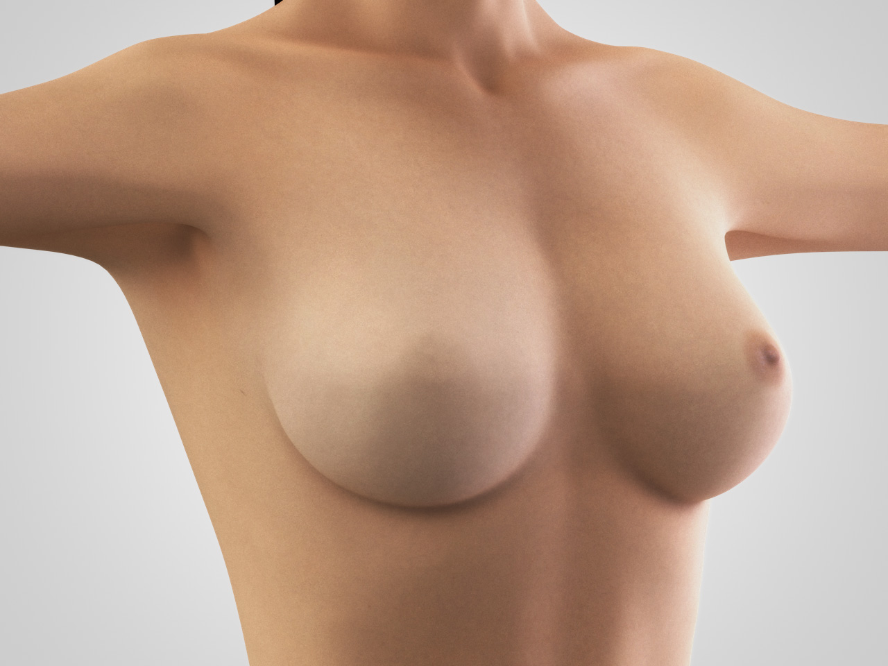 breast reconstruction 2
