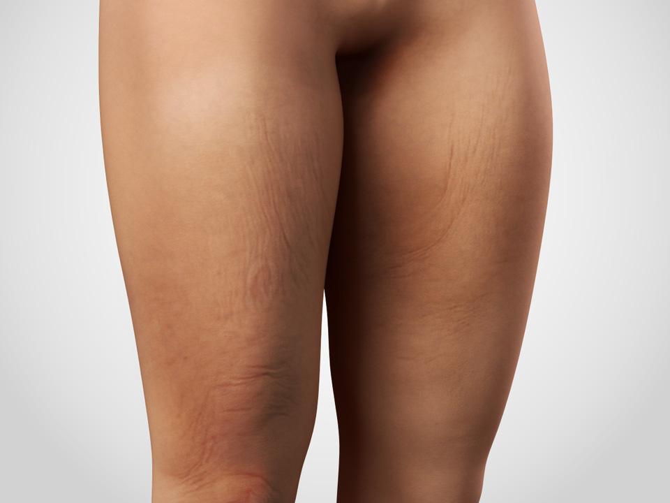 thigh lift 1