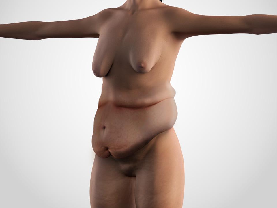 body contouring 1